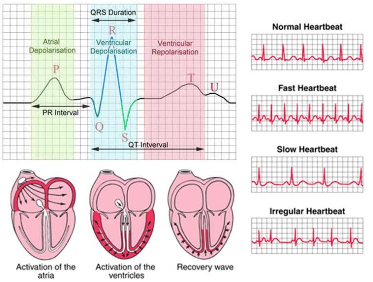 📉 Interpreting heart function data | The A Level Biologist ...